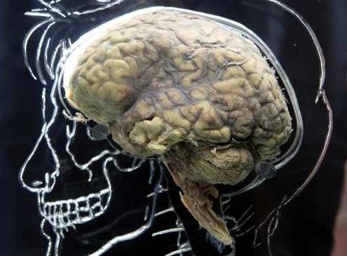 Brain Fingerprint: Helping Detect Mental Illness, According To Scientists