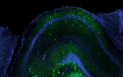 These are transplanted inhibitory neurons (green) successfully incorporated into the hippocampus of a mouse with traumatic brain injury.