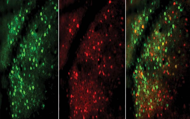 EXCITATORY (GREEN) AND INHIBITORY (RED) NEURONS