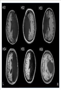 fMRI Scan of Adults with One Hemisphere Removed during Childhood