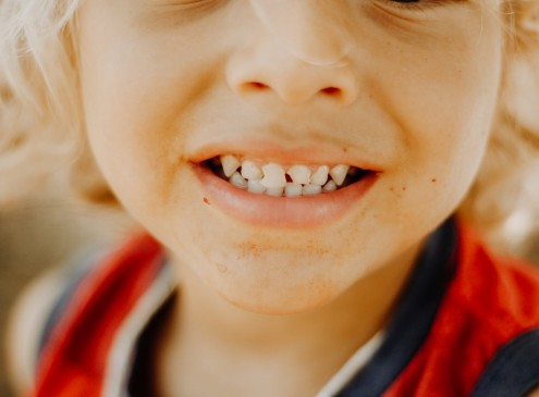 New Study Explores the Link Between Obesity and Gum Disease