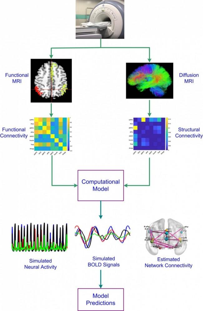 Imaging Reveals Pathways Behind Depression