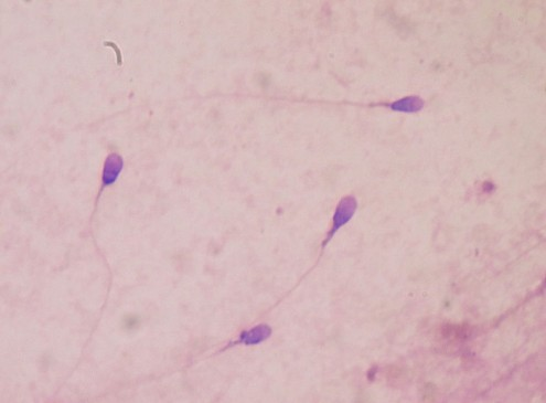 Researchers Develop New Method to Treat Male Infertility