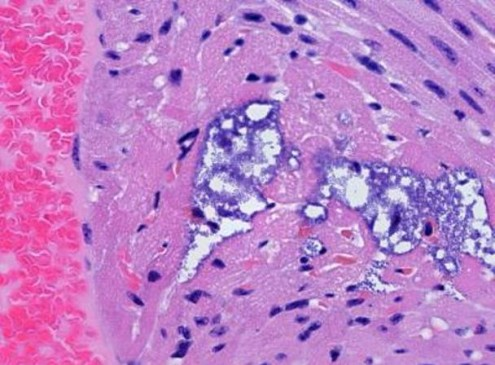 Pneumonia Bacterium Leaves behind Tiny Lesions in Heart, study